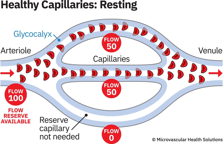 cap-healthy-resting-MHS-1500