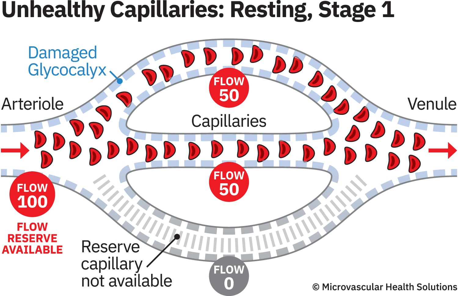cap-unhealthy-resting-stage1-MHS-1500